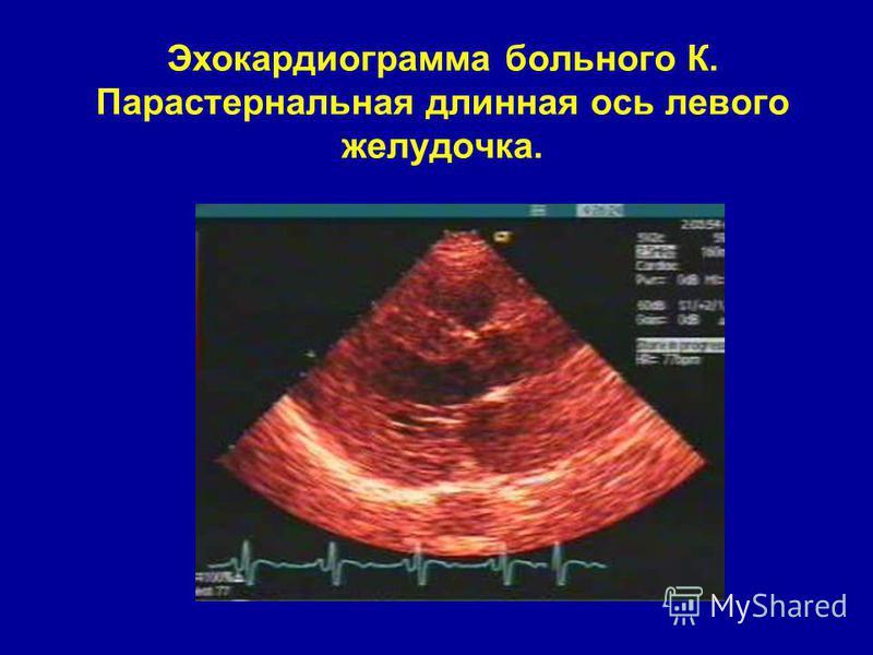 Эхокардиограмма больного К. Парастернальная длинная ось левого желудочка.