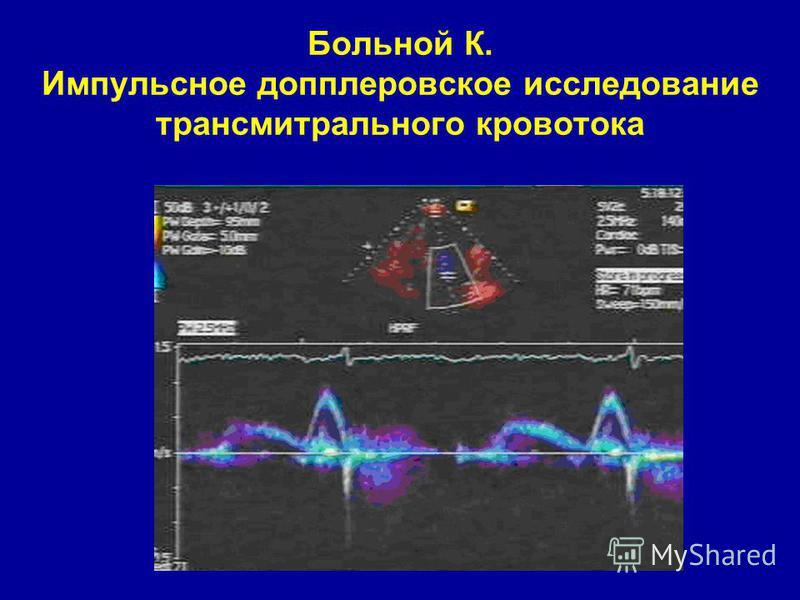 Больной К. Импульсное допплеровское исследование трансмитрального кровотока