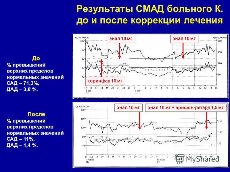 Результаты СМАД больного К. до и после коррекции лечения энап 10 мг коринфар 10 мг энап 10 мг + арифон-ретард 1,5 мгэнап 10 мг До % превышений верхних пределов нормальных значений САД – 71,3%, ДАД – 3,8 %. После % превышений верхних пределов нормальн
