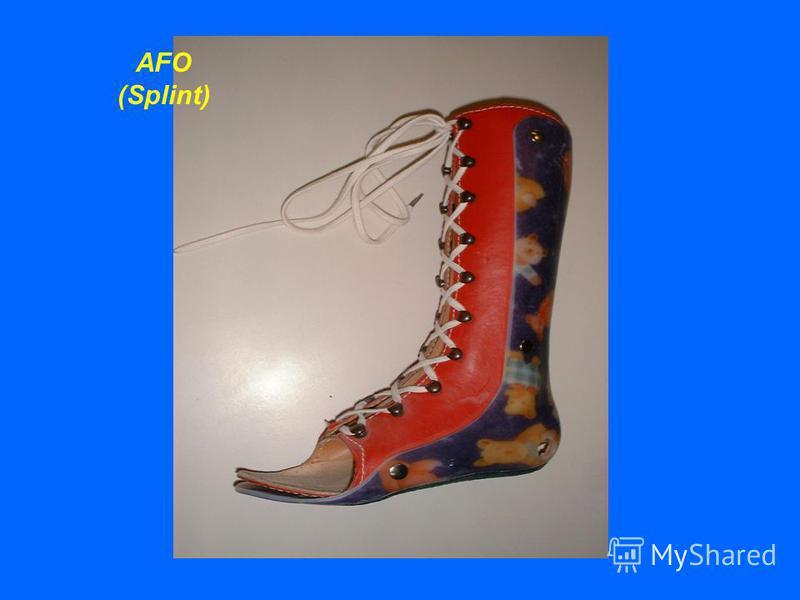 AFO (Splint)