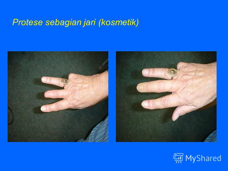 Above elbow protese (fungsional)