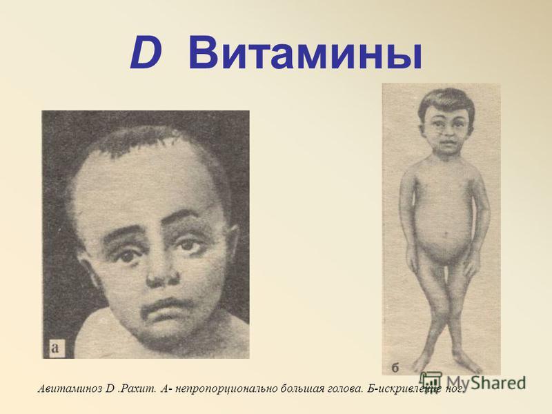 D Витамины Авитаминоз D.Рахит. А- непропорционально большая голова. Б-искривление ног.