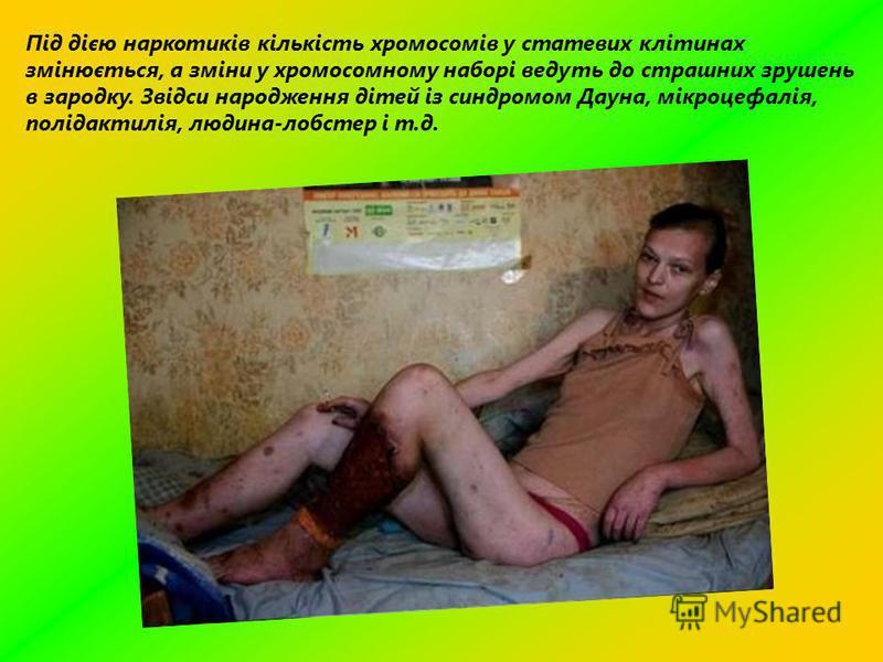 Під дією наркотиків кількість хромосомів у статевих клітинах змінюється, а зміни у хромосомному наборі ведуть до страшних зрушень в зародку. Звідси народження дітей із синдромом Дауна, мікроцефалія, полідактилія, людина-лобстер і т.д.