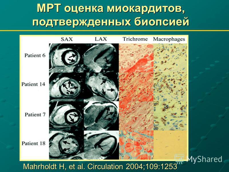 МРТ оценка миокардитов, подтвержденных биопсией Mahrholdt H, et al. Circulation 2004;109:1253