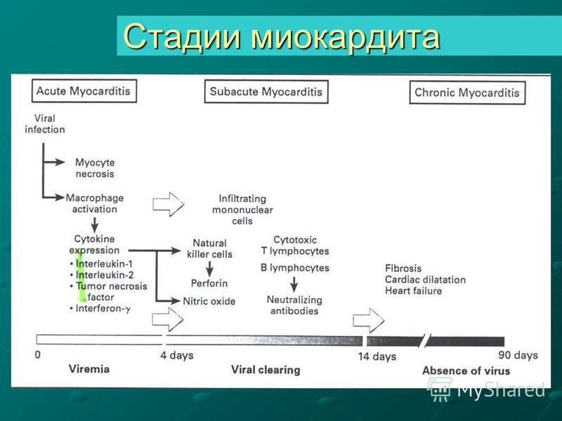 Стадии миокардита