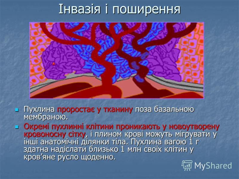 Інвазія і поширення Пухлина проростає у тканину поза базальною мембраною. Пухлина проростає у тканину поза базальною мембраною. Окремі пухлинні клітини проникають у новоутворену кровоносну сітку, і плином крові можуть мігрувати у інші анатомічні діля