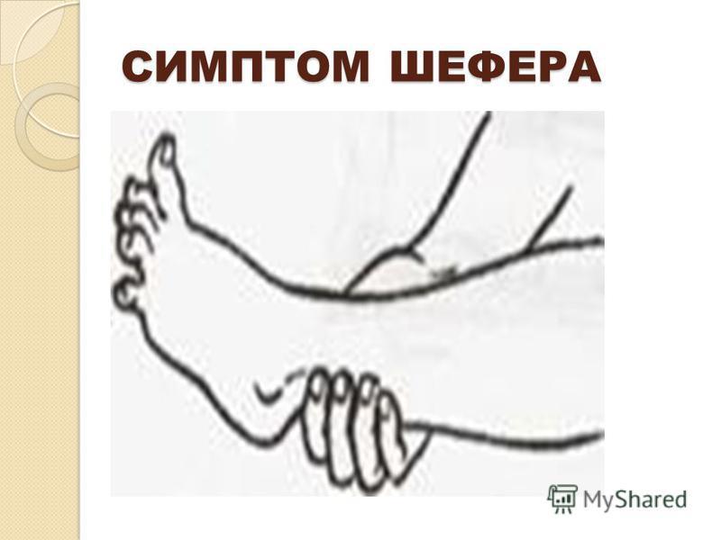 СИМПТОМ ШЕФЕРА