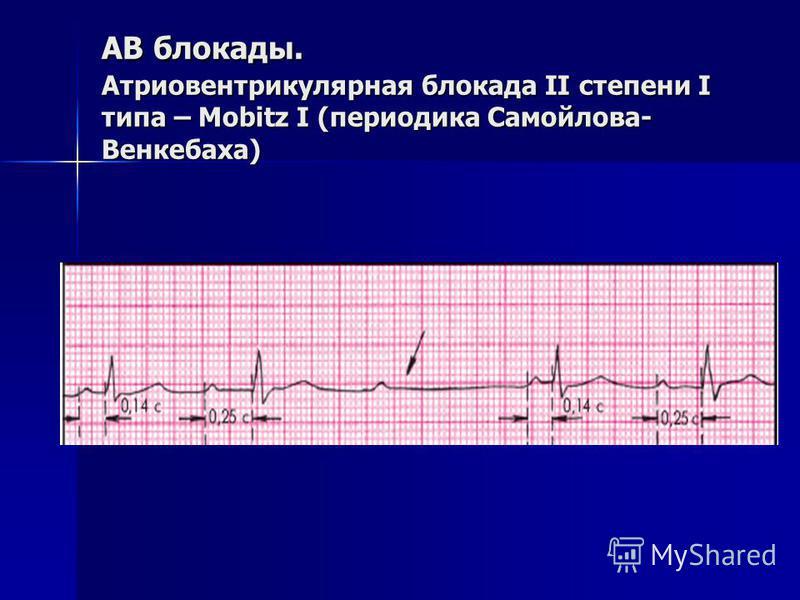 АВ блокады. Атриовентрикулярная блокада II степени I типа – Mobitz I (периодика Самойлова- Венкебаха)