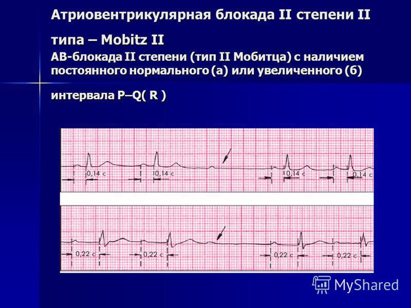 Атриовентрикулярная блокада II степени II типа – Mobitz II АВ-блокада II степени (тип II Мобитца) с наличием постоянного нормального (а) или увеличенного (б) интервала P–Q( R )
