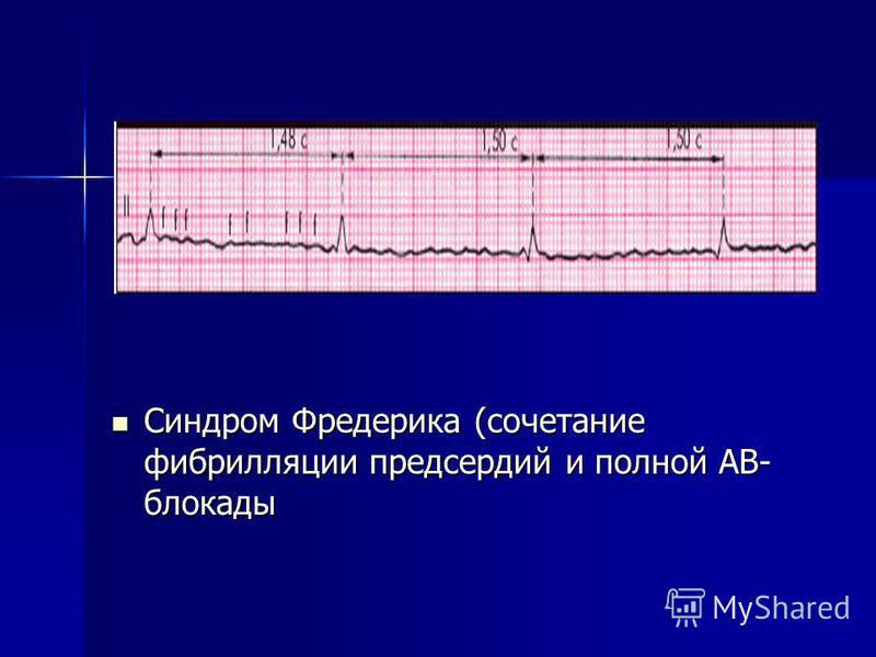 Синдром Фредерика (сочетание фибрилляции предсердий и полной АВ- блокады Синдром Фредерика (сочетание фибрилляции предсердий и полной АВ- блокады
