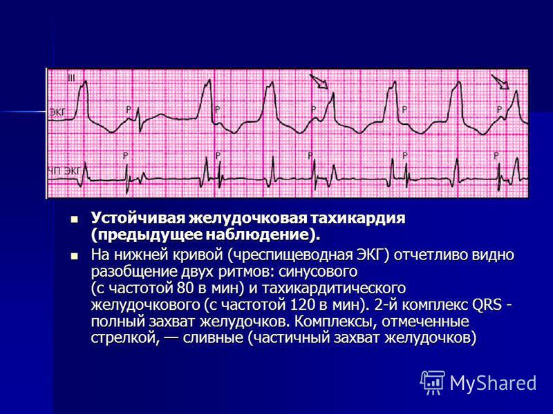 Устойчивая желудочковая тахикардия (предыдущее наблюдение). Устойчивая желудочковая тахикардия (предыдущее наблюдение). На нижней кривой (чреспищеводная ЭКГ) отчетливо видно разобщение двух ритмов: синусового (с частотой 80 в мин) и тахикардитическог