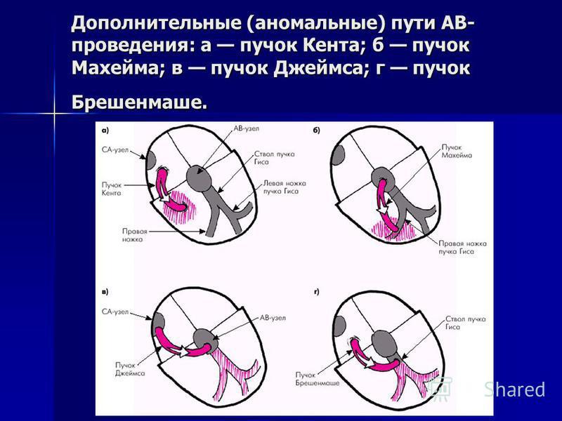 Дополнительные (аномальные) пути АВ- проведения: а пучок Кента; б пучок Махейма; в пучок Джеймса; г пучок Брешенмаше.