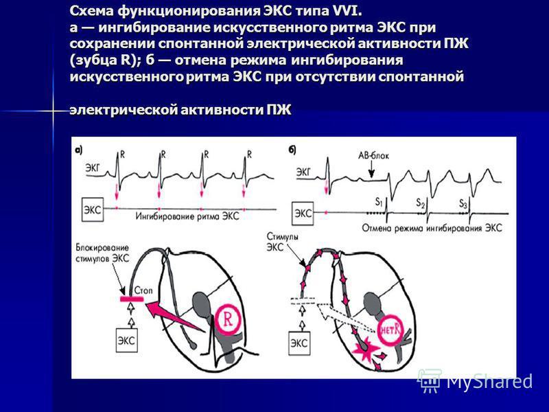 Схема функционирования ЭКС типа VVI. а ингибирование искусственного ритма ЭКС при сохранении спонтанной электрической активности ПЖ (зубца R); б отмена режима ингибирования искусственного ритма ЭКС при отсутствии спонтанной электрической активности П