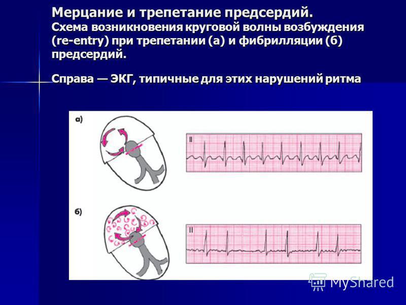 Мерцание и трепетание предсердий. Схема возникновения круговой волны возбуждения (re-entry) при трепетании (а) и фибрилляции (б) предсердий. Справа ЭКГ, типичные для этих нарушений ритма