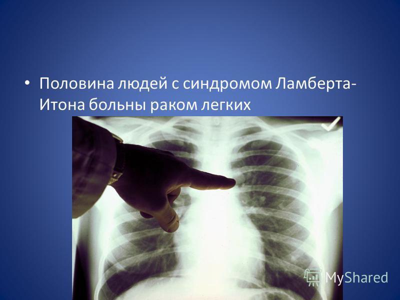 Половина людей с синдромом Ламберта- Итона больны раком легких