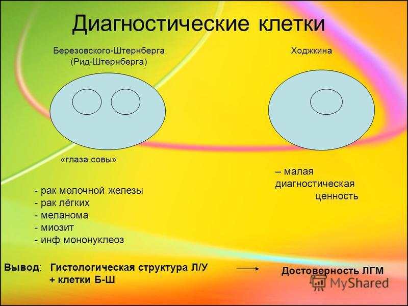 Диагностические клетки Березовского-Штернберга (Рид-Штернберга) «глаза совы» Ходжкина - рак молочной железы - рак лёгких - меланома - миозит - инф мононуклеоз – малая диагностическая ценность Вывод: Гистологическая структура Л/У + клетки Б-Ш Достовер