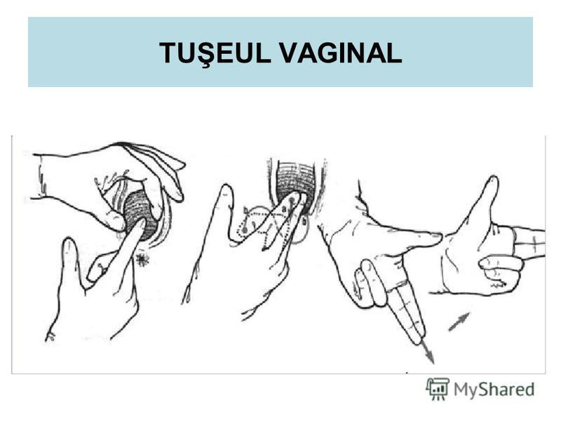 TUŞEUL VAGINAL