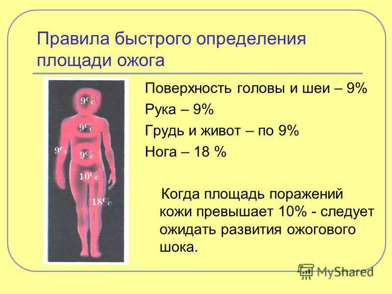 Правила быстрого определения площади ожога Поверхность головы и шеи – 9% Рука – 9% Грудь и живот – по 9% Нога – 18 % Когда площадь поражений кожи превышает 10% - следует ожидать развития ожогового шока.