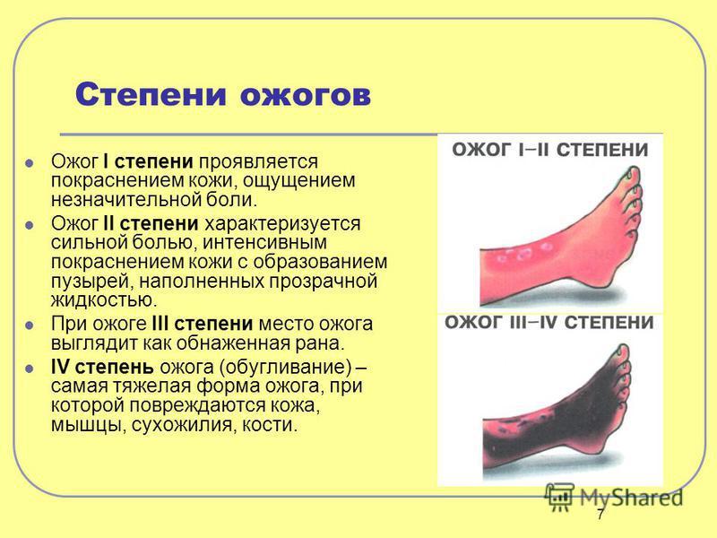 7 Степени ожогов Ожог I степени проявляется покраснением кожи, ощущением незначительной боли. Ожог II степени характеризуется сильной болью, интенсивным покраснением кожи с образованием пузырей, наполненных прозрачной жидкостью. При ожоге III степени