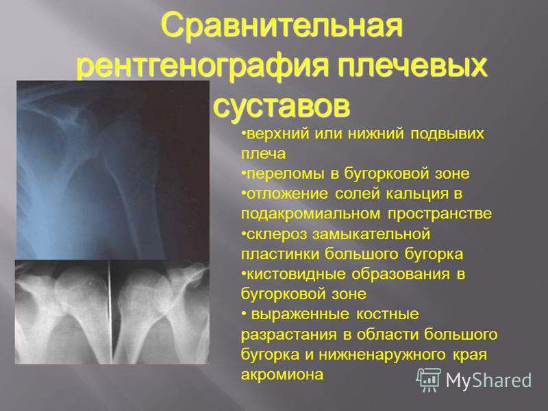 Сравнительная рентгенография плечевых суставов верхний или нижний подвывих плеча переломы в бугорковой зоне отложение солей кальция в подакромиальном пространстве склероз замыкательной пластинки большого бугорка кистовидные образования в бугорковой з
