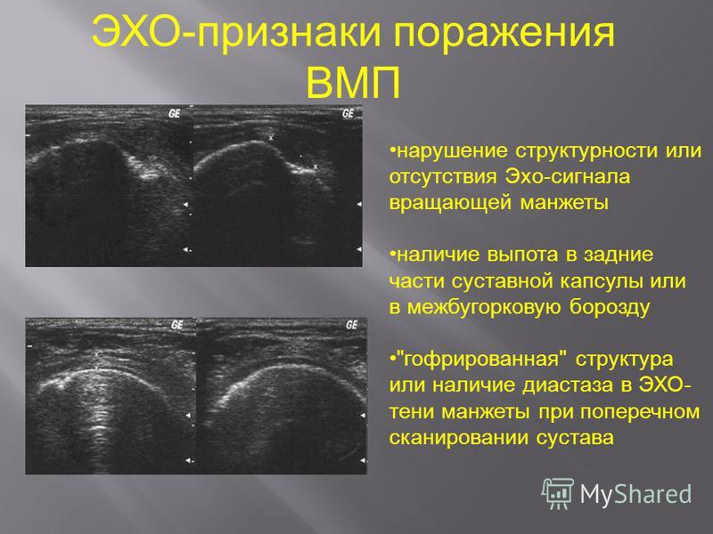 ЭХО-признаки поражения ВМП нарушение структурности или отсутствия Эхо-сигнала вращающей манжеты наличие выпота в задние части суставной капсулы или в межбугорковую борозду