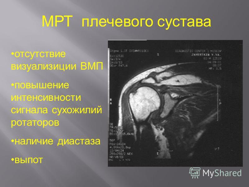 МРТ плечевого сустава отсутствие визуализации ВМП повышение интенсивности сигнала сухожилий ротаторов наличие диастаза выпот