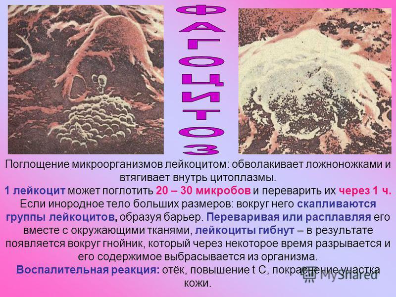 Поглощение микроорганизмов лейкоцитом: обволакивает ложноножками и втягивает внутрь цитоплазмы. 1 лейкоцит может поглотить 20 – 30 микробов и переварить их через 1 ч. Если инородное тело больших размеров: вокруг него скапливаются группы лейкоцитов, о
