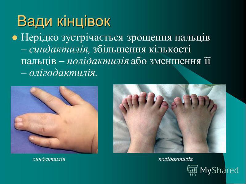 Вади кінцівок Нерідко зустрічається зрощення пальців – синдактилія, збільшення кількості пальців – полідактилія або зменшення її – олігодактилія. синдактиліяполідактилія
