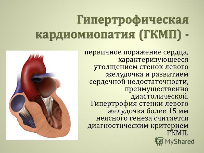 первичное поражение сердца, характеризующееся утолщением стенок левого желудочка и развитием сердечной недостаточности, преимущественно диастолической. Гипертрофия стенки левого желудочка более 15 мм неясного генеза считается диагностическим критерие