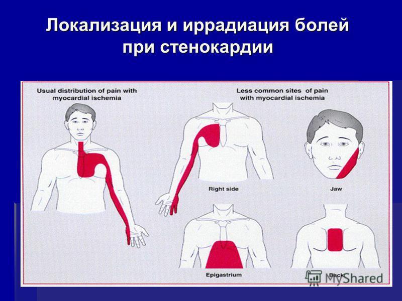 Локализация и иррадиация болей при стенокардии