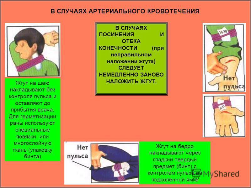 В СЛУЧАЯХ АРТЕРИАЛЬНОГО КРОВОТЕЧЕНИЯ Жгут на шею накладывают без контроля пульса и оставляют до прибытия врача. Для герметизации раны используют специальные повязки или многослойную ткань (упаковку бинта) В СЛУЧАЯХ ПОСИНЕНИЯ И ОТЕКА КОНЕЧНОСТИ (при н