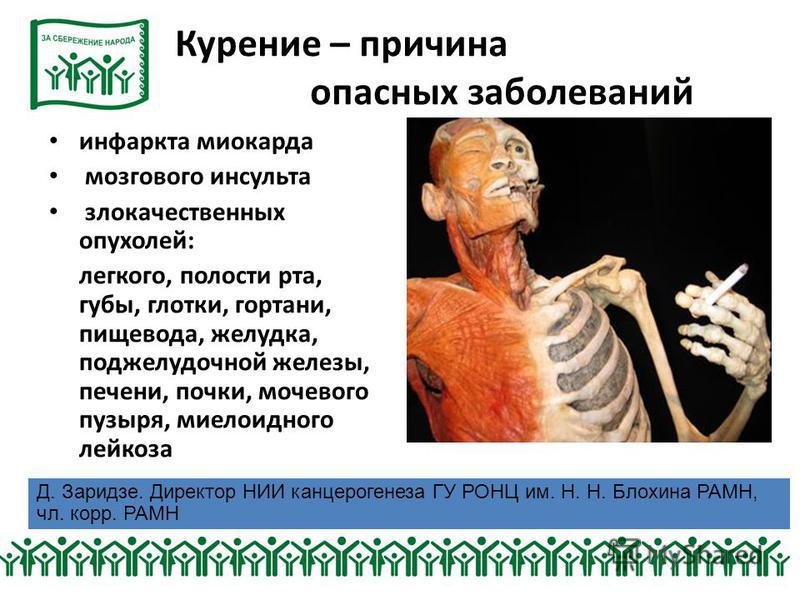 Курение – причина опасных заболеваний инфаркта миокарда мозгового инсульта злокачественных опухолей: легкого, полости рта, губы, глотки, гортани, пищевода, желудка, поджелудочной железы, печени, почки, мочевого пузыря, миелоидного лейкоза Д. Заридзе.