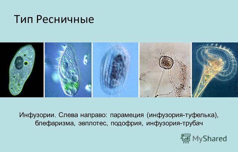 Тип Ресничные Инфузории. Слева направо: парамеция (инфузория-туфелька), блефаризма, эвплотес, подофрия, инфузория-трубач