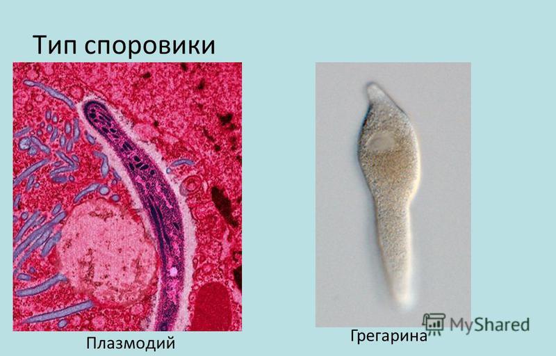 Тип споровики Плазмодий Грегарина