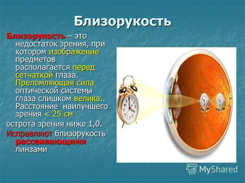 Близорукость Близорукость – это недостаток зрения, при котором изображение предметов располагается перед сетчаткой глаза. Преломляющая сила оптической системы глаза слишком велика.. Расстояние наилучшего зрения < 25 см острота зрения ниже 1,0. Исправ