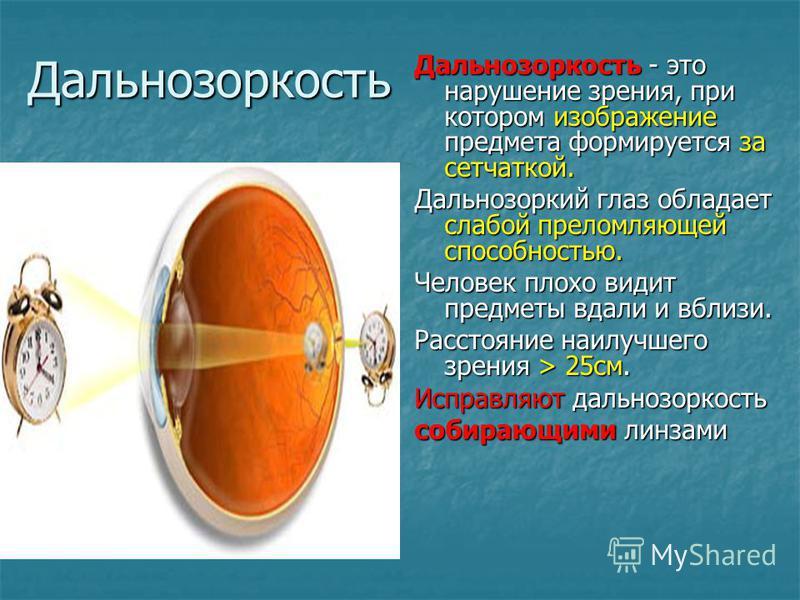 Дальнозоркость Дальнозоркость - это нарушение зрения, при котором изображение предмета формируется за сетчаткой. Дальнозоркий глаз обладает слабой преломляющей способностью. Человек плохо видит предметы вдали и вблизи. Расстояние наилучшего зрения >