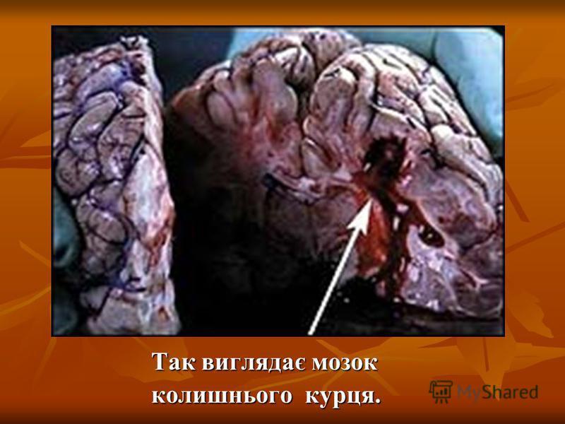Так виглядає мозок Так виглядає мозок колишнього курця. колишнього курця.