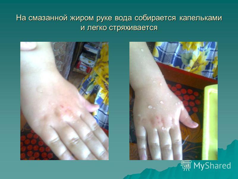 На смазанной жиром руке вода собирается капельками и легко стряхивается