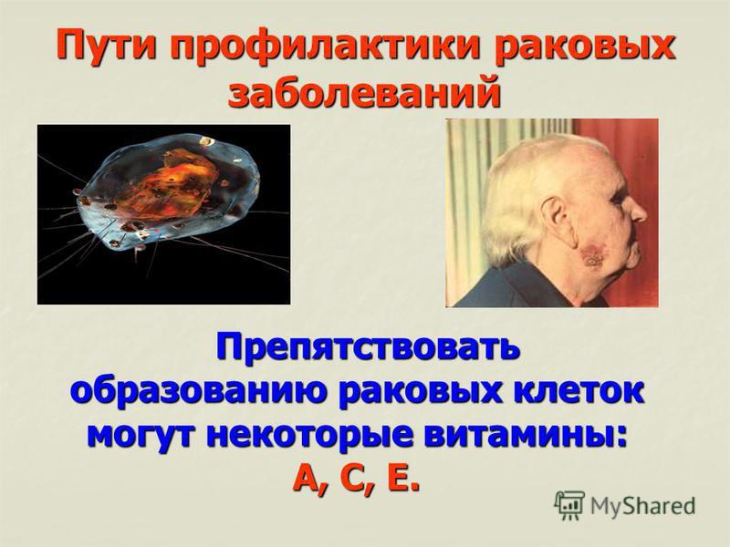 Пути профилактики раковых заболеваний Препятствовать образованию раковых клеток могут некоторые витамины: А, С, Е. Препятствовать образованию раковых клеток могут некоторые витамины: А, С, Е.