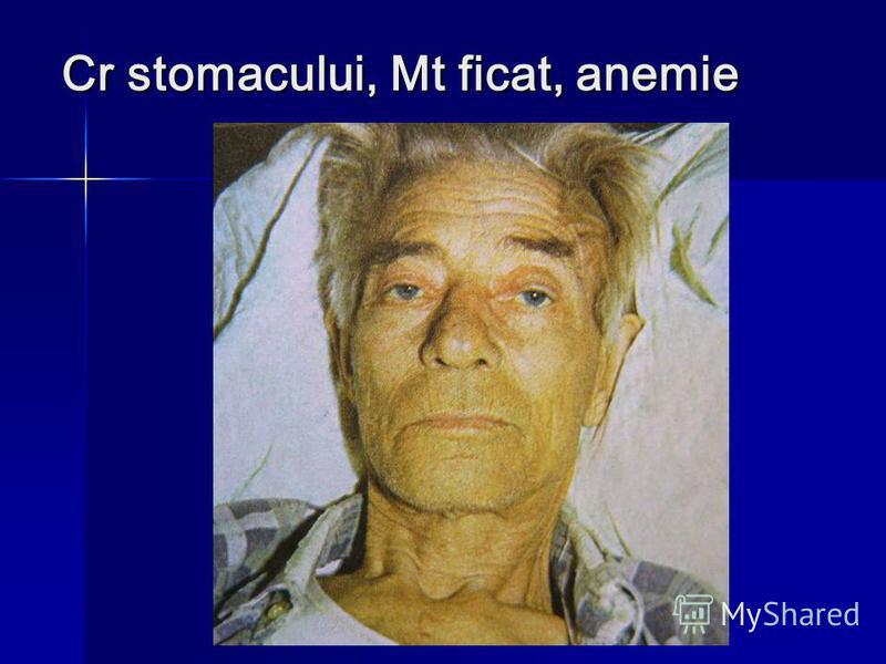 Cr stomacului, Mt ficat, anemie