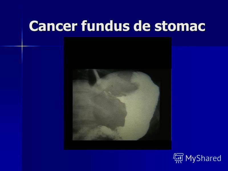 Cancer fundus de stomac