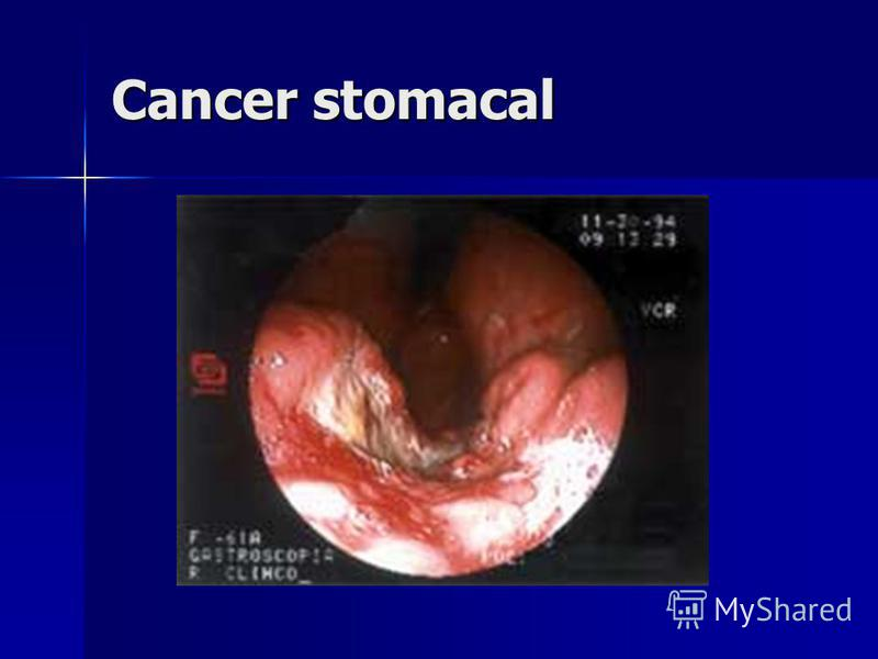 Cancer stomacal