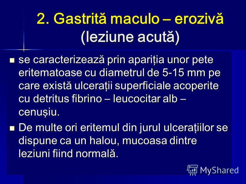 2. Gastrită maculo – erozivă (leziune acută) se caracterizează prin apariţia unor pete eritematoase cu diametrul de 5-15 mm pe care există ulceraţii superficiale acoperite cu detritus fibrino – leucocitar alb – cenuşiu. se caracterizează prin apariţi