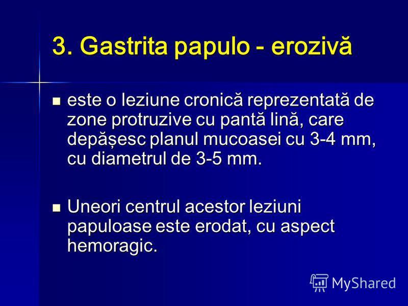 3. Gastrita papulo - erozivă este o leziune cronică reprezentată de zone protruzive cu pantă lină, care depăşesc planul mucoasei cu 3-4 mm, cu diametrul de 3-5 mm. este o leziune cronică reprezentată de zone protruzive cu pantă lină, care depăşesc pl