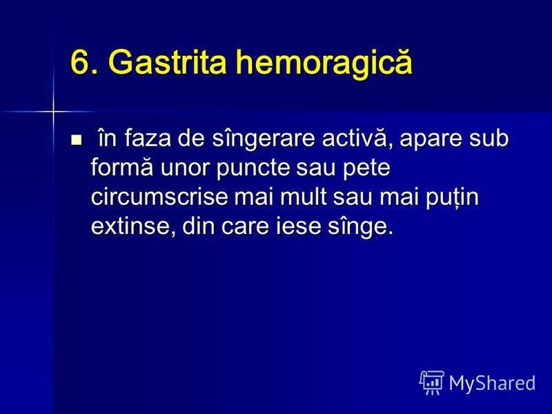 6. Gastrita hemoragică în faza de sîngerare activă, apare sub formă unor puncte sau pete circumscrise mai mult sau mai puţin extinse, din care iese sînge. în faza de sîngerare activă, apare sub formă unor puncte sau pete circumscrise mai mult sau mai