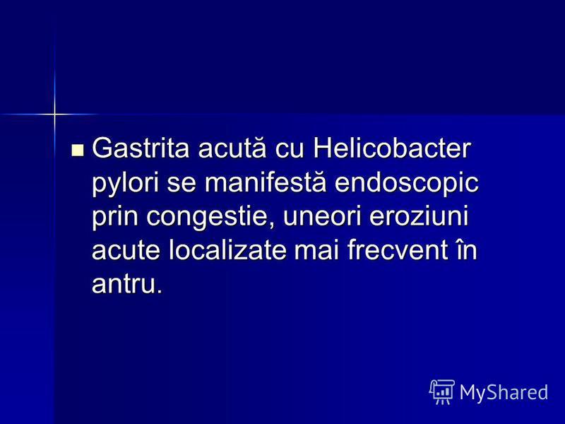 Gastrita acută cu Helicobacter pylori se manifestă endoscopic prin congestie, uneori eroziuni acute localizate mai frecvent în antru. Gastrita acută cu Helicobacter pylori se manifestă endoscopic prin congestie, uneori eroziuni acute localizate mai f