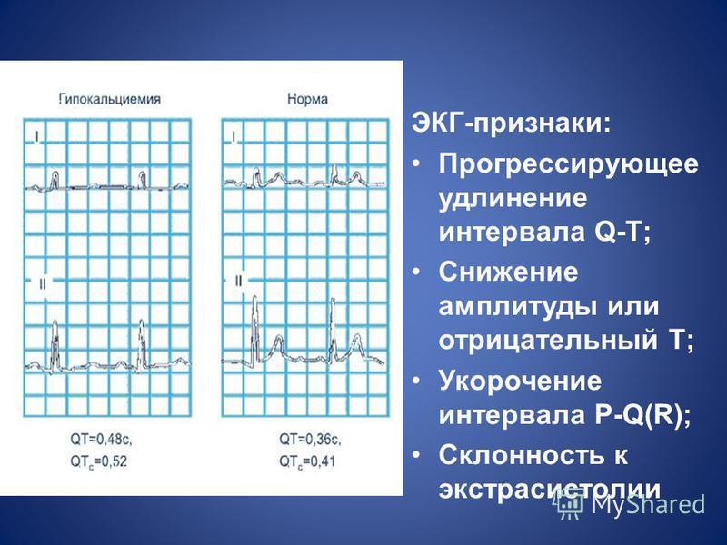 ЭКГ-признаки: Прогрессирующее удлинение интервала Q-T; Снижение амплитуды или отрицательный T; Укорочение интервала P-Q(R); Склонность к экстрасистолии