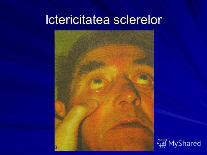 Ictericitatea sclerelor