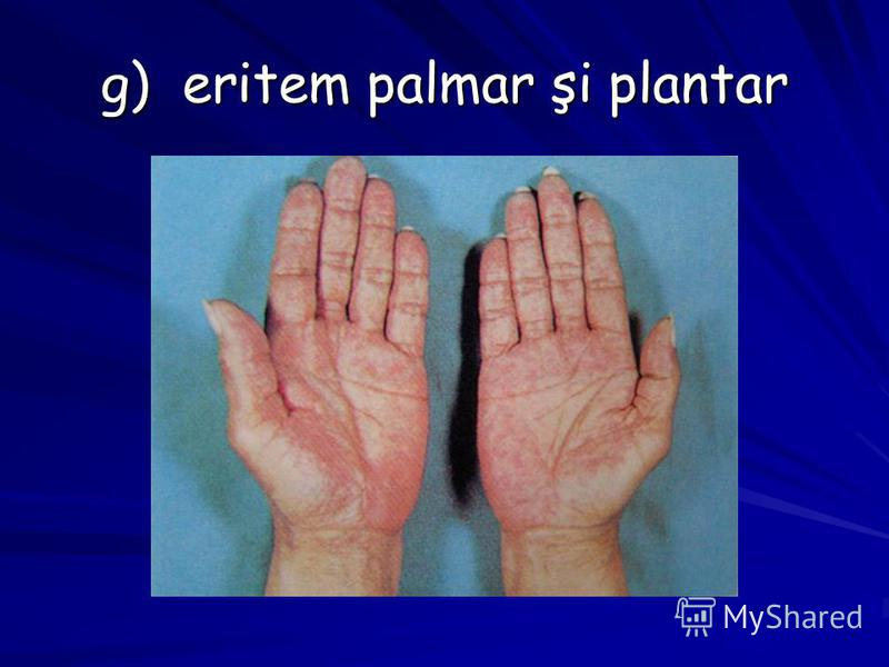 g) eritem palmar şi plantar