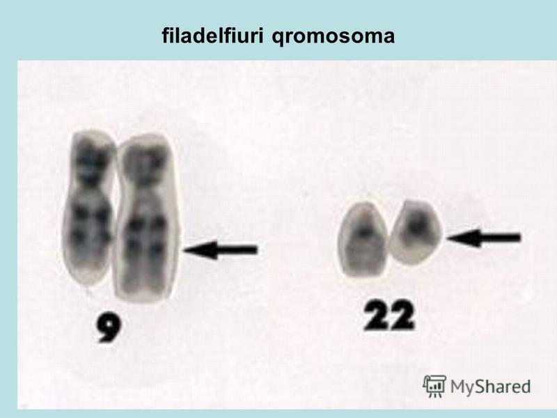 filadelfiuri qromosoma